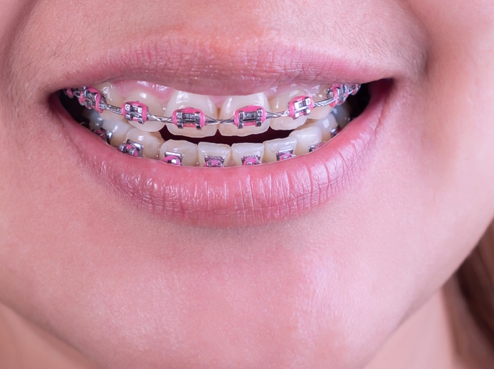 close up of braces